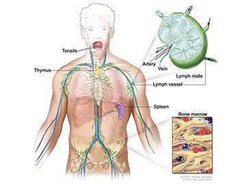 Lymphoma—Patient Version - National Cancer Institute